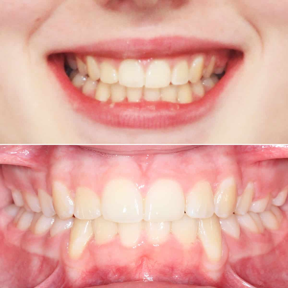 After orthodontic treatment 02