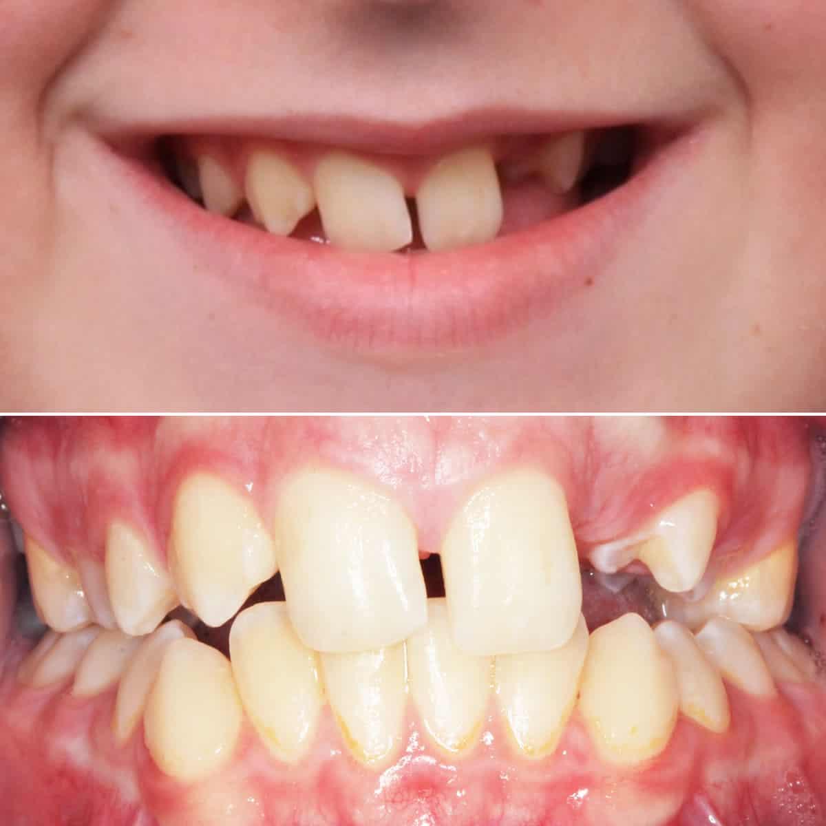 Before orthodontic treatment 01