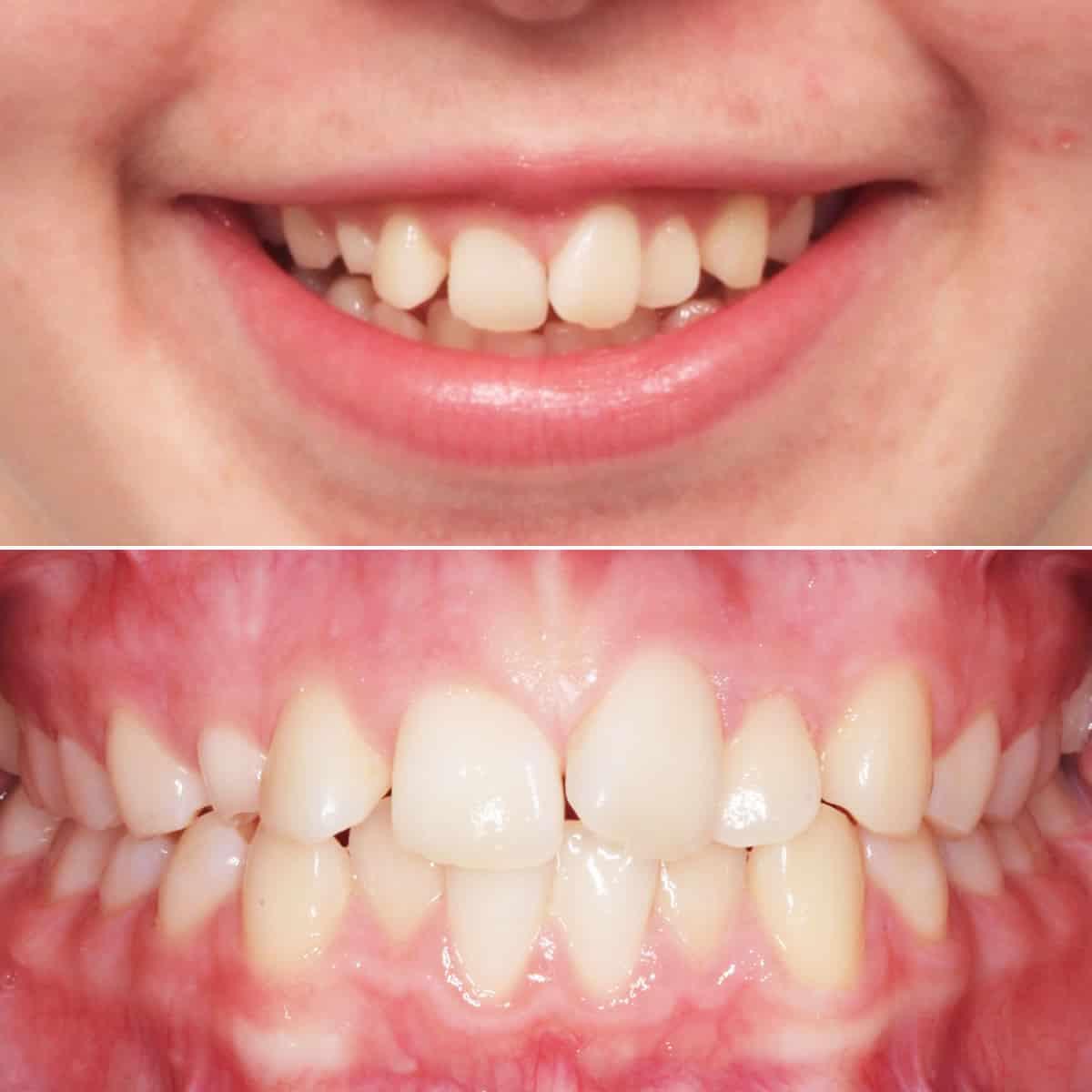 Before orthodontic treatment 05